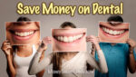 Save Money on Dental Bills